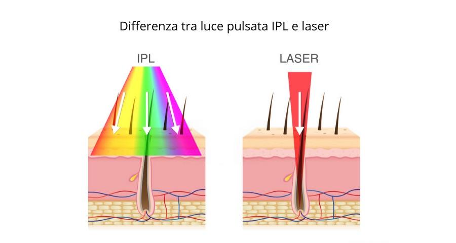 differenza tra luce pulsata e laser